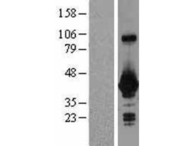 GNPTG Overexpression Lysate