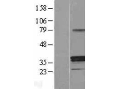 11 beta-HSD1 Overexpression Lysate (Native)