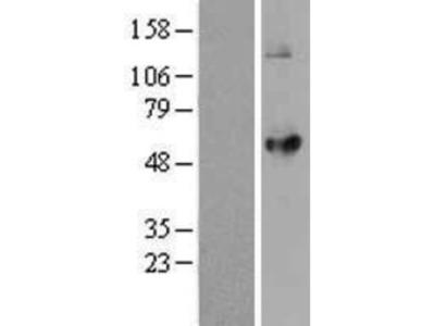 LPCAT2 Overexpression Lysate