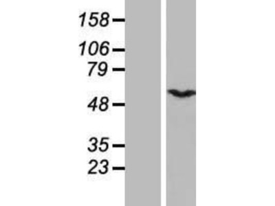 CSN1 Overexpression Lysate