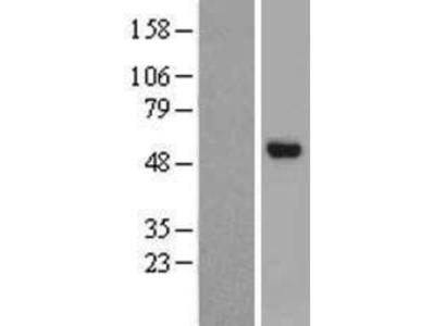 CHST8 Overexpression Lysate