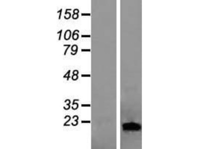 Lipocalin-1 Overexpression Lysate