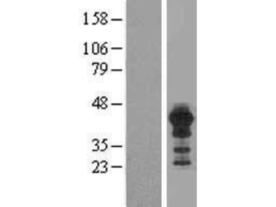 HOMER3 Overexpression Lysate