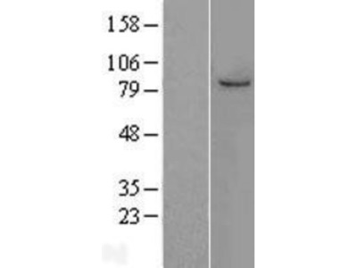 MCM7 Overexpression Lysate