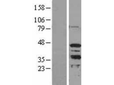 MRG15 Overexpression Lysate