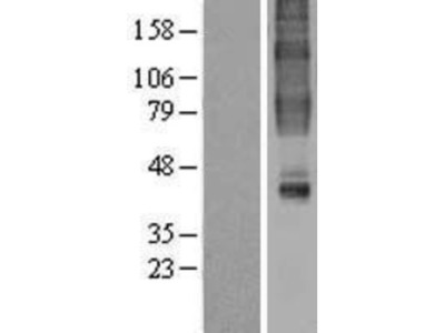 GPR32 Overexpression Lysate