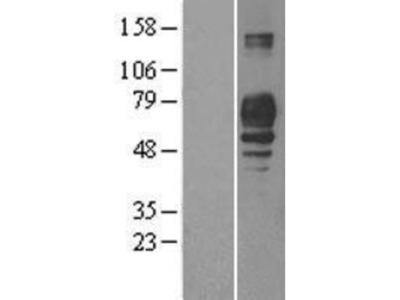 PLD3 / Phospholipase D3 Overexpression Lysate (Native)