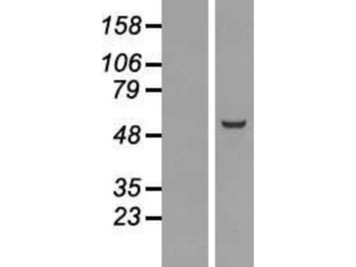 Nuf2 Overexpression Lysate