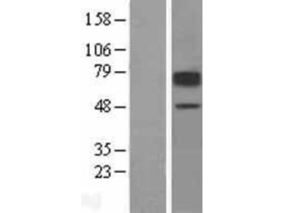 SLC22A2 /OCT2 Overexpression Lysate