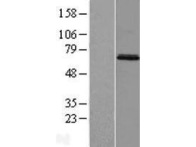 MIER3 Overexpression Lysate