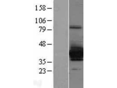 Cytosolic Sulfotransferase 4A1/SULT4A1 Overexpression Lysate