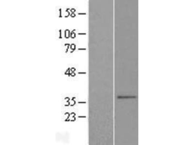 SLC25A38 Overexpression Lysate