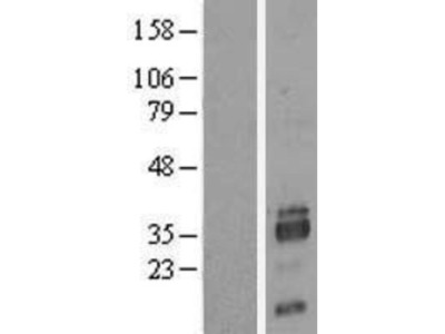 SIAH2 Overexpression Lysate