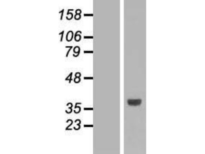 SLC25A3 Overexpression Lysate