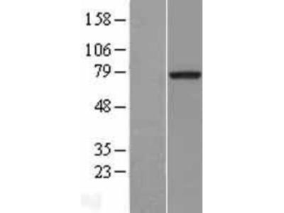 MTMR2 Overexpression Lysate