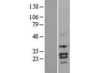 SOST/Sclerostin Overexpression Lysate