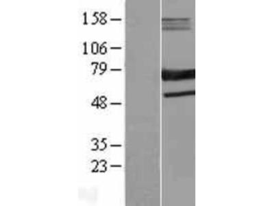 SAMHD1 Overexpression Lysate
