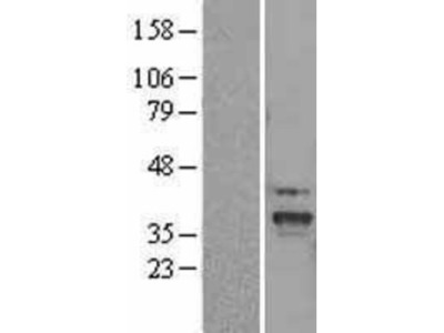 SLC25A22 Overexpression Lysate