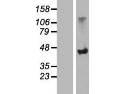 SLC7A6OS Overexpression Lysate