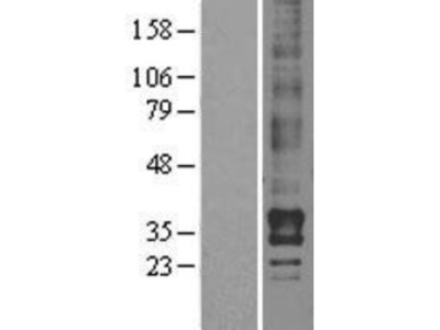 LPAR2 / LPA2 / EDG-4 Overexpression Lysate