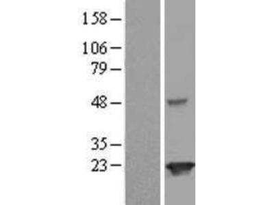 JOSD2 Overexpression Lysate