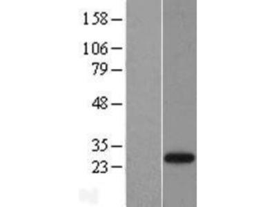 NEDP1 /SENP8 Overexpression Lysate