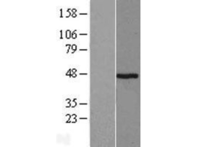 Pepsinogen A Overexpression Lysate (Native)