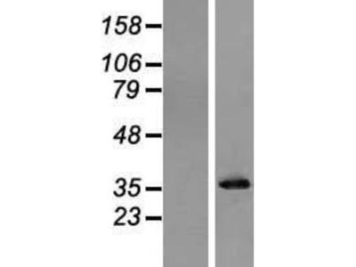 Inorganic Pyrophosphatase / PPA1 Overexpression Lysate (Native)