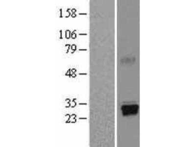 Trypsin 1/PRSS1 Overexpression Lysate