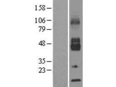 Glucose Transporter GLUT6 Overexpression Lysate