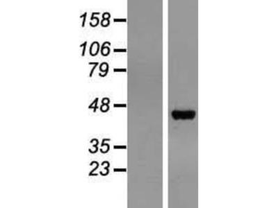 Pepsinogen C / PGC / Progastricsin Overexpression Lysate (Native)