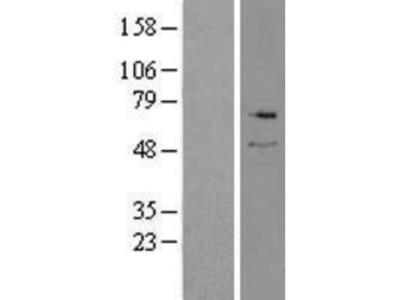 Serine Palmitoyltransferase 2 Overexpression Lysate