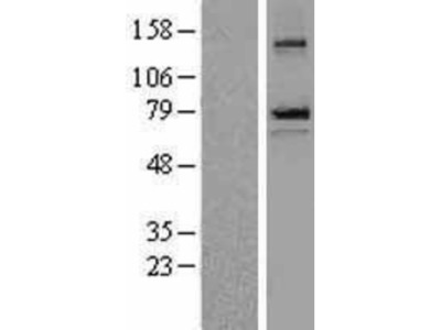 epithelial Sodium Channel beta Overexpression Lysate