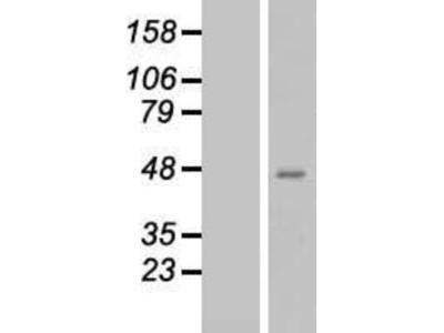 Glutaminyl-peptide Cyclotransferase / QPCT Overexpression Lysate (Native)