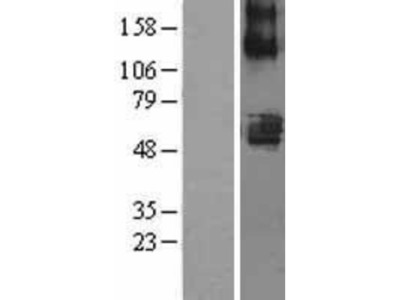 SLC22A7 Overexpression Lysate