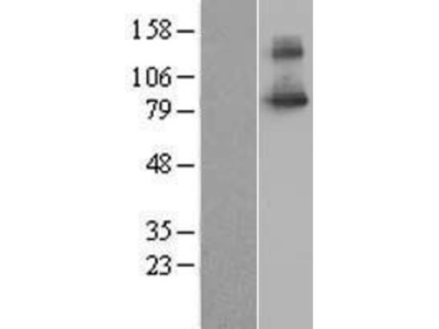 SLC20A1 Overexpression Lysate