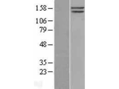 SMC1 Overexpression Lysate