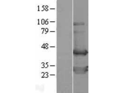 TWF2 Overexpression Lysate