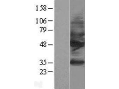 Somatostatin R2/SSTR2 Overexpression Lysate