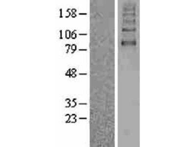 SGLT2/SLC5A2 Overexpression Lysate