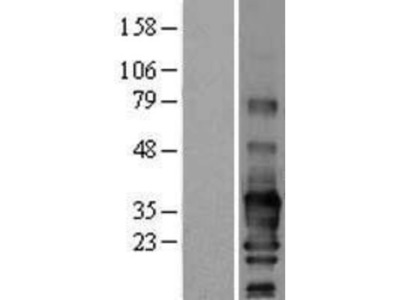 SCN3B Overexpression Lysate
