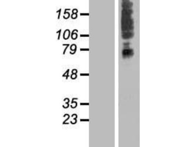 SLC41A3 Overexpression Lysate