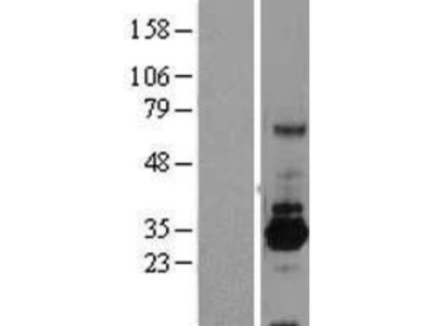 SRPRB Overexpression Lysate