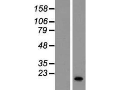 SERF1B Overexpression Lysate