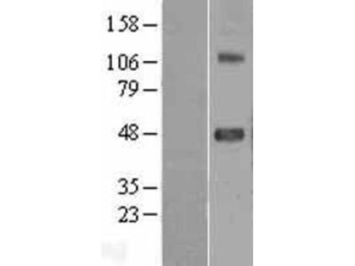 SRPX2 Overexpression Lysate