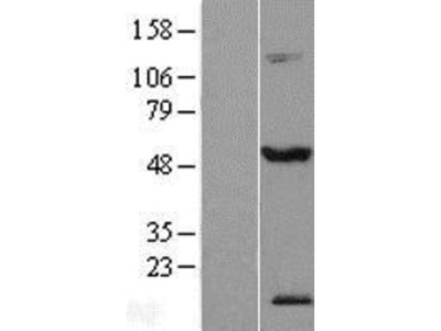 TEX13A Overexpression Lysate