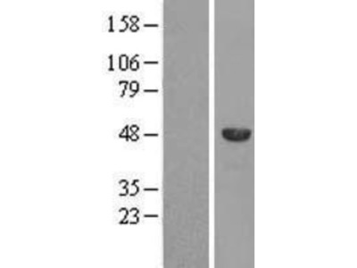 SPAG8 Overexpression Lysate