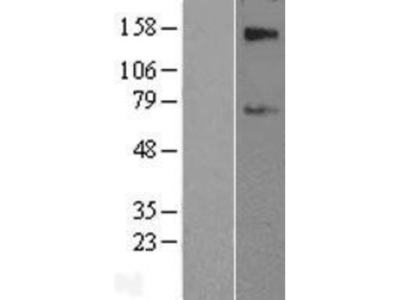 SLC39A12 Overexpression Lysate