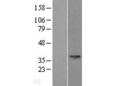 SPEM1 Overexpression Lysate