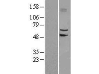 SLC39A4 /ZIP4 Overexpression Lysate